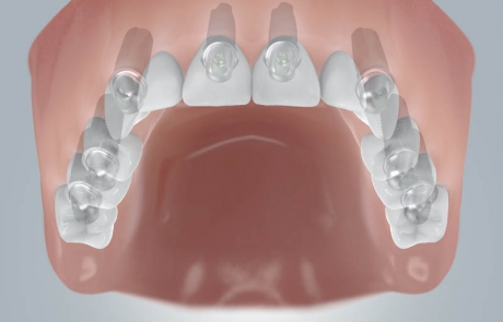 Zahnloser OK mit Implantatversorgung